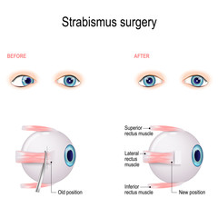 Strabismus Surgery. Eye muscle recession