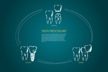 Teeth procedure - crown, veneer, implant vector concept set