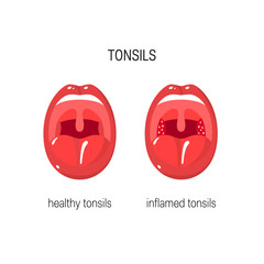 Tonsils vector illustration