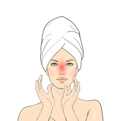 Beauty care illustration. Skin problems solution. Skin layer of woman which appear redness on facial from sunburn. Illustration about danger of Ultraviolet radiation. Vector Spa girl