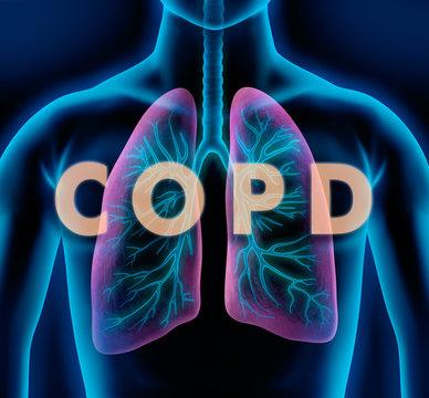 Motiv COPD - Lunge und Bronchien
