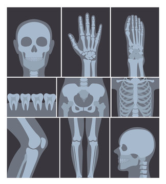 Vector illustration set of X-rays shots. Hand, Head, knee, and other parts of human body on X ray shots on white background.