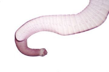 Tapeworm (Parasitic flatworm) of cattle and other grazing animals