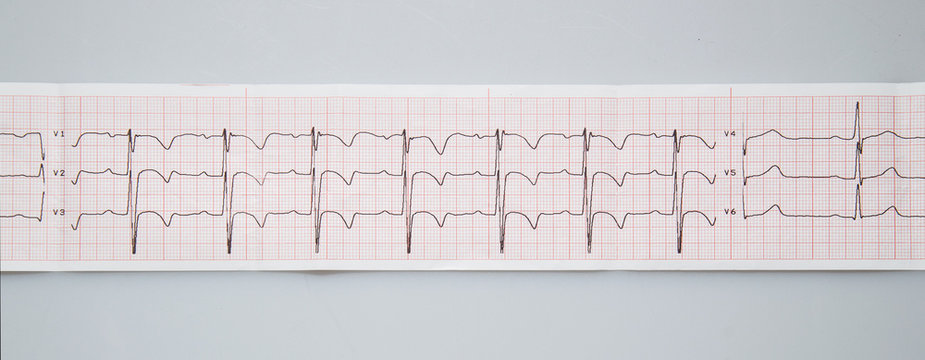 Medical research. Electrocardiogram. The normal result of electrocardiography in a 3-year-old child.