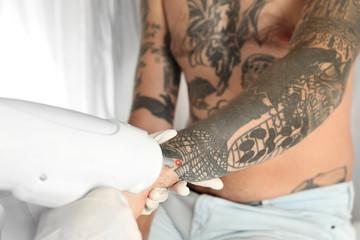 Man undergoing laser tattoo removal procedure in salon, closeup