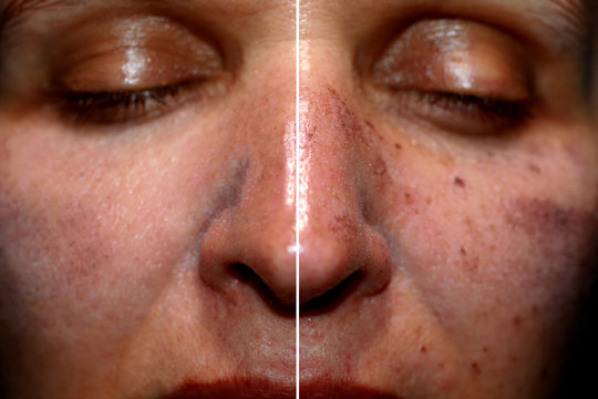 One half of the face in pigmentation and brown spots, the other side of the face after laser polishing and peeling