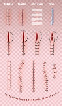 Surgical Suture Stitches Set
