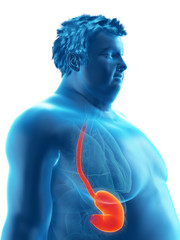 3d rendered medically accurate illustration of an obese mans stomach
