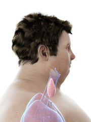3d rendered medically accurate illustration of an obese mans thyroid gland