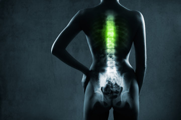 Human spine in x-ray, on gray background. The chest spine is highlighted by green colour.