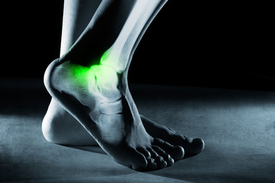 Human foot ankle and leg in x-ray, on gray background. The foot ankle is highlighted by green colour.