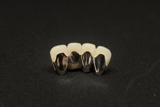 dental crown and bridge of lower incisor teeth on black background