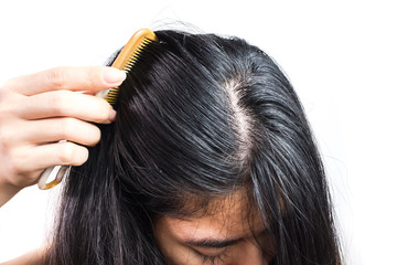 women head with dandruff Caused by the problem of dirty. Or caused by skin disease or Seborrheic Dermatitis. It has white scaly and it will cause itch. Product Concepts Scalp Care and Hair Care.