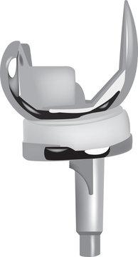 protesi in titanio per usura del ginocchio umano