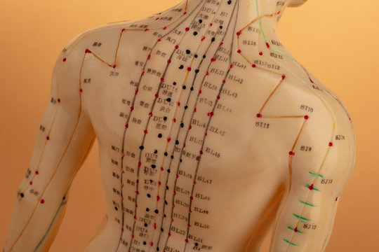 Back from Acupuncture Model