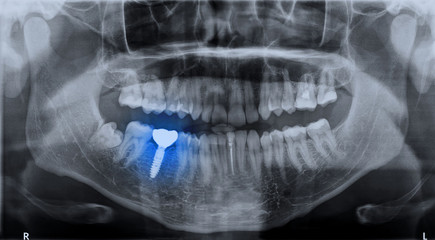 Panoramic dental x-ray image mouth of adult man and single dental implant with crown attached used for tooth replacement, with indicated with treatment area