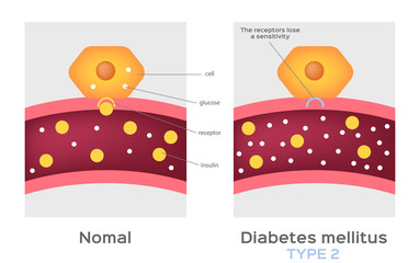Insulin type / normal physiology , diabetes / unlocks the cell's glucose channel animation graphic