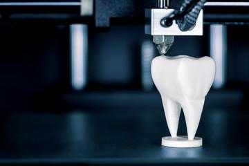 Verwendung eines 3D Druckers in der Zahntechnik oder Zahnmedizin, Zahnprothese wird durch fused filament fabrication hergestellt