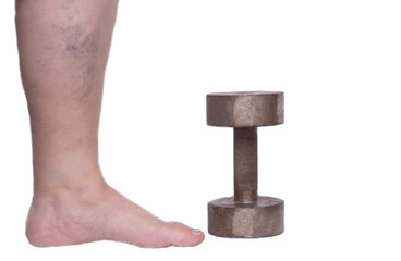 Leg of an elderly woman on a white background with varicose veins, near an iron dumbbell, heaviness in the legs, the concept of varicose veins in the legs, phlebeurysm