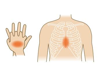 応急手当イラスト74:救急蘇生法・胸骨圧迫
