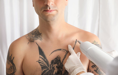 Man undergoing laser tattoo removal procedure in salon