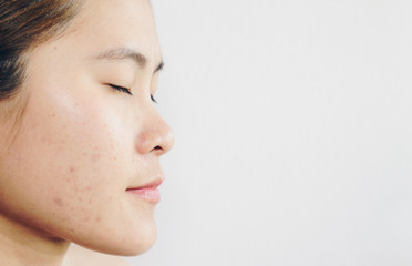 Half face of Asian woman has problems with skin on her face. Problems with acne and scar on the female skin with white background.