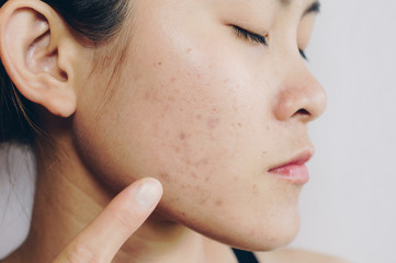 Portrait of Asian woman has problems with skin on her face. Problems with acne and scar on the female skin.