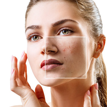 Young woman with acne skin in zoom square.