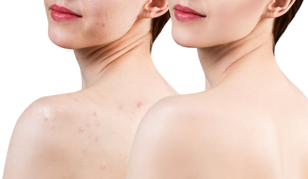 Young woman with acne on shoulders before and after treatment.