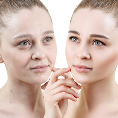 Portrait of woman before and after skin rejuvenation.