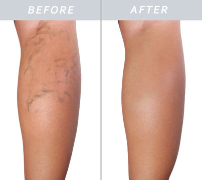 woman leg with varicose veins before and after