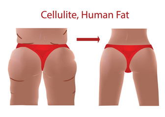 Fat female body with cellulite, Human Fat, Before and After with Fit body, vector