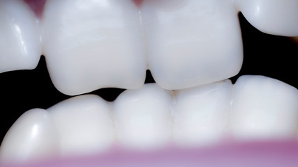 Close-up of a mouth with crooked teeth and malocclusion
