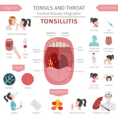 Tonsils and throat diseases. Tonsillitis symptoms, treatment icon set. Medical infographic design