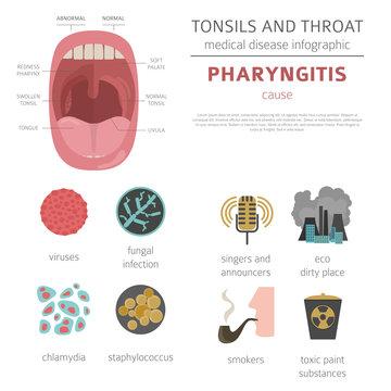 Tonsils and throat diseases. Pharyngitis symptoms, treatment icon set. Medical infographic design