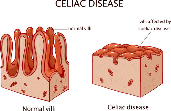 Coeliac disease or celiac disease. small bowel showing coeliac disease manifested by blunting of villi.