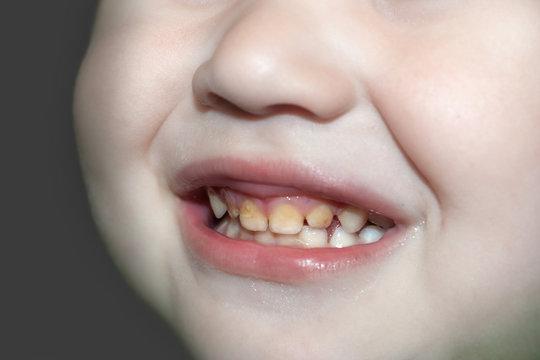 The boy's broad smile demonstrates improper oral and dental care.