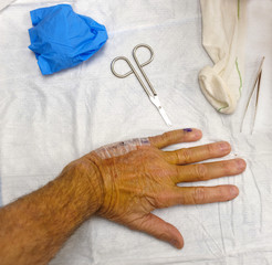 Post-operation removal of stitches from hand surgery.