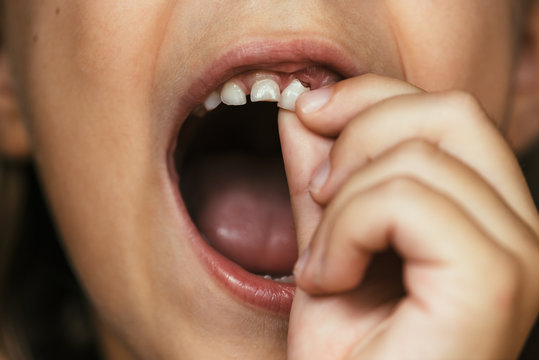 A Girl Pulling Out her Front Tooth
