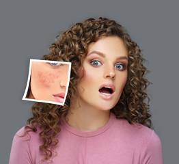Couperose-prone skin