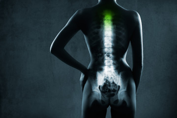 Human spine in x-ray, on gray background. The neck spine is highlighted by green colour.