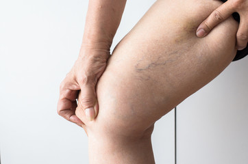 Varicose veins on the elderly asian woman leg,Close up