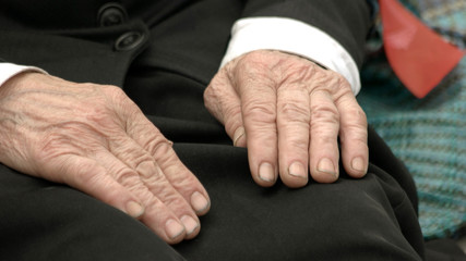 Wrinkled hands of old woman on her knees. Close up senior woman sitting with hands on knee, cropped image. Hands of old working woman.