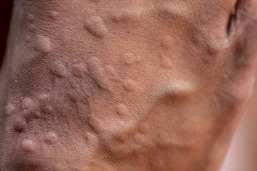 The lesion on foot after caused by ants bites (Red imported fire ant).