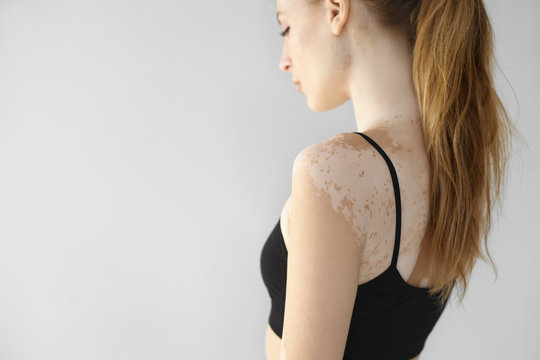 Side view of gorgeous slender young European woman with long ponytail looking down, showing white vitiligo spots on her back and arm. People, dermatology, beauty, depigmentation and skin disorder