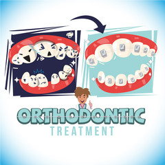 before and after of orthodontist treatment. come  with typographic design - vector