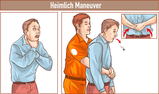 Clip Art of One man stands behind the conscious victim with his hands in the proper position on the victim's abdomen to perform the Heimlich maneuver