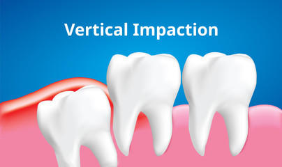 Wisdom tooth ( Vertical impaction ) with inflammation affect , Dental care concept, Realistic illustration Vector