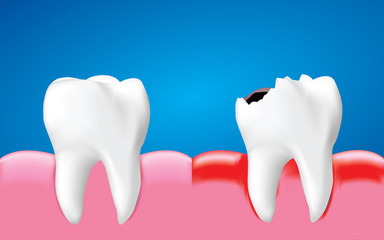 Decay tooth with inflammation and healthy tooth, Dental care concept, Realistic illustration Vector.