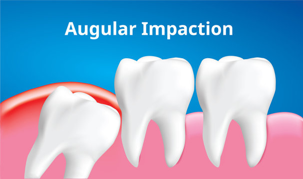Wisdom tooth ( Angular or mesial impaction ) with inflammation affect , Dental care concept, Realistic illustration Vector